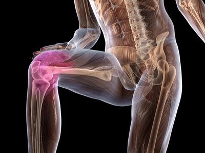 Артроз коленного сустава лечение в домашних условиях как лечить недуг