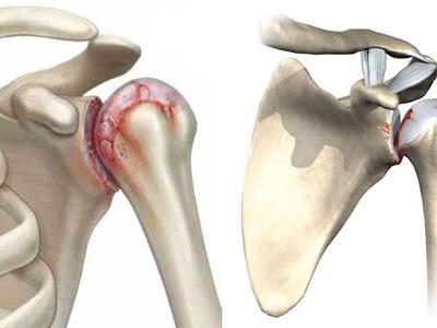 методы лечения суставов на ногах