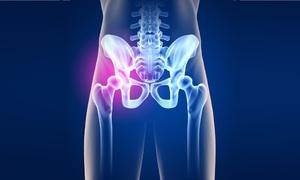 Тазобедренный сустав и возможные проблемы с ними