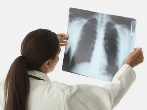 Симптомы заболевания пневмонии и плеврита
