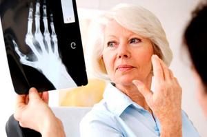 Описание видов полиартрита и причин заболевания