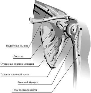 Периатртрит  - особенности болезни