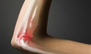 Способы лечени я артрита