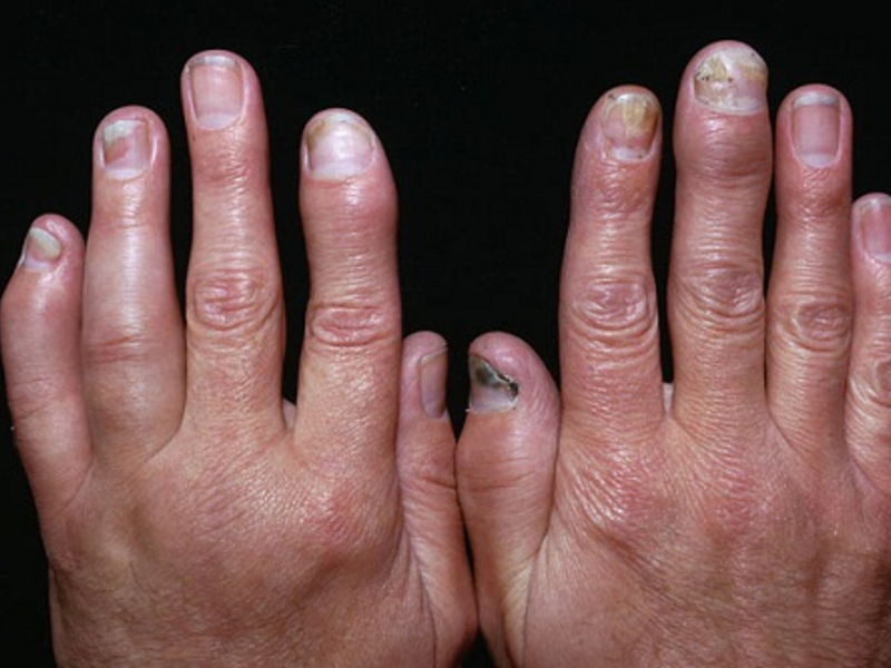 Народная медицина при псориатическом артрите фото