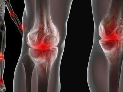 Лечение реактивного артрита у детей — Суставы