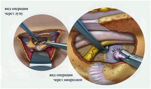 Нейрохирургическое удаление грыжи - операция, щадящая