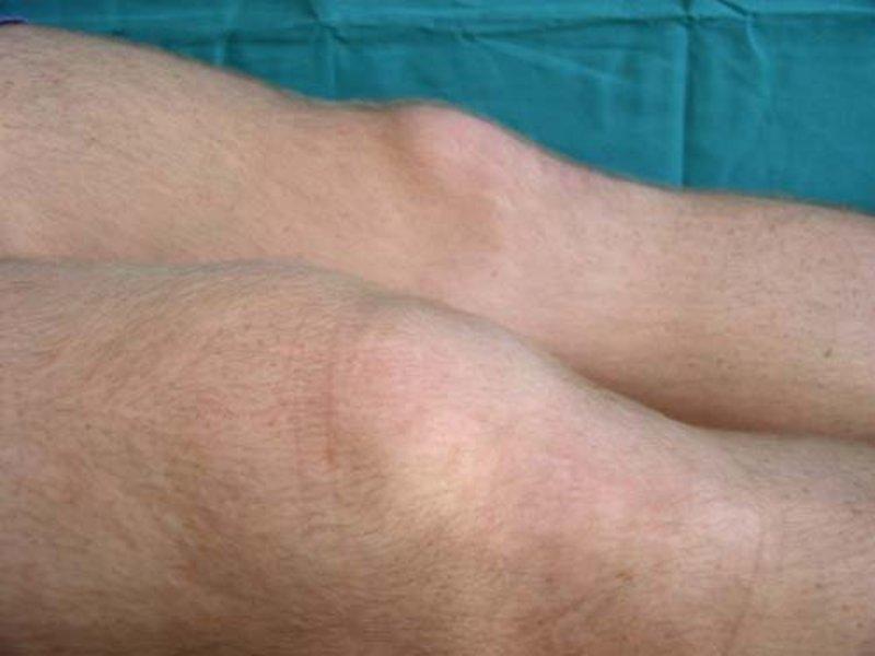 Инфекционно аллергический артрит коленного сустава фото