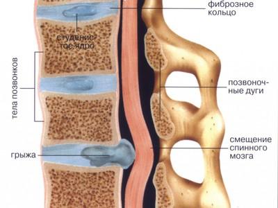 Лечение грыжи позвоночника без операции народными средствами