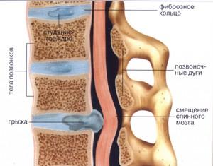 Как лечат позвоночную шрыжу