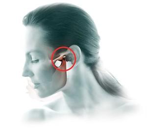 Воспаление челюстно лицевого сустава симптомы лечение