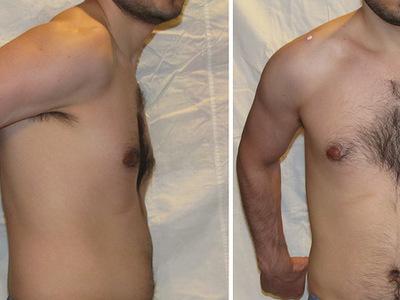При поднятии руки вверх или отведении назад сильно болит плечо и верхняя часть предплечья