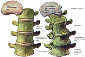Что такое остеофиты