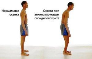 Инстраграма осанки - здоровый позвоночник и болезнь Бехтерева