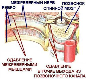 Межреберная невралгия - причины заболевания