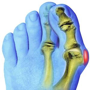 Сустав большого пальца ноги болит