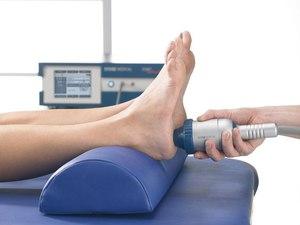 Физиотерапевтическое лечение плантарного фасциита