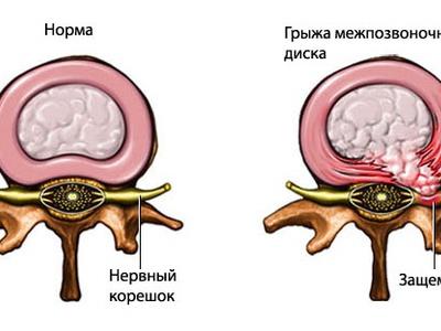 Защемление нерва в позвоночнике, отчего его начинает защемлять и способы лечения поясницы