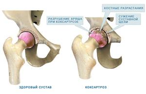 Изображение - Болезни тазобедренного сустава у женщин лечение lechenie-koksartroza