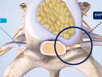 Защемление нерва в пояснице, лечение ущемления нерва в поясничном отделе