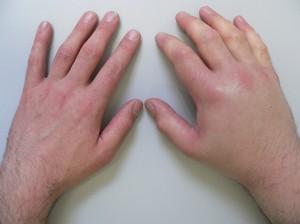 Отек руки - причины и методы лечения