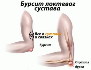 лечение бурсита локтевого сустава димексидом