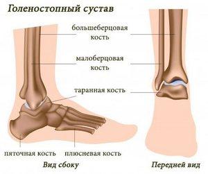 Какие симптомы у разрыва связок