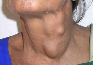 Подкожные шишки в области шеи - что это такое