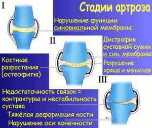 Изображение - Локтевой сустав методы лечения deformiruyuschii-osteoartroz