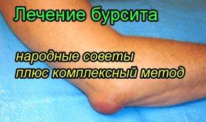 Изображение - Локтевой сустав методы лечения lechenie-bursita