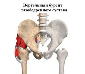 Почему болит тазобедренный сустав у женщин