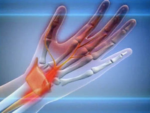 Изображение - Болит сустав запястья левой руки boli-v-levom-zapyaste
