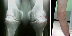 Гонартроз коленного сустава - рентгеновский снимок