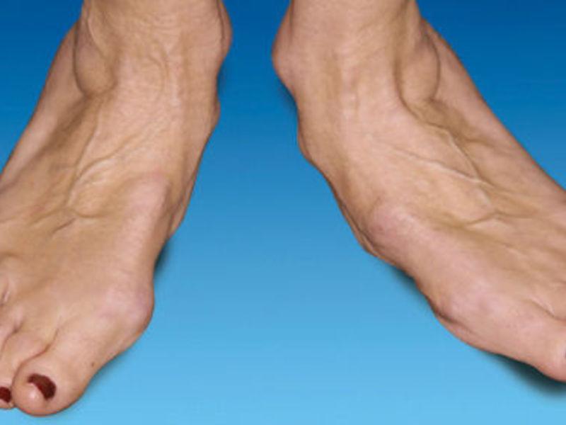 Лечение суставов на ноге эндопротезирование тазобедренного сустава в финляндии в г тампере