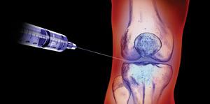 Внутрисуставные инъекции помогут при арторозах