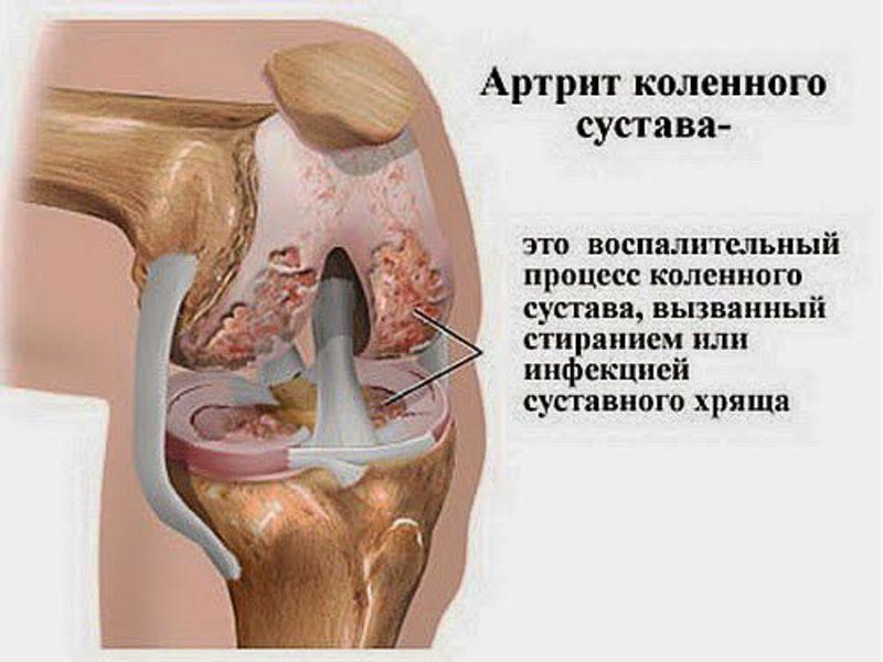 Действие паразитов на суставы какие инфекции могут порожать суставы
