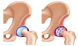 Лечение артроза тазобедренного сустава 2 степени