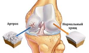 Лечение суставов: список лекарств от артрита, рекомендации по ...