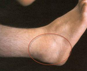 Артроз стопы симптомы и лечение фото причины развития болезни