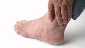 Какие симптомы у артрита