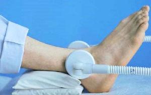 Как лечить артрит голеностопного сустава
