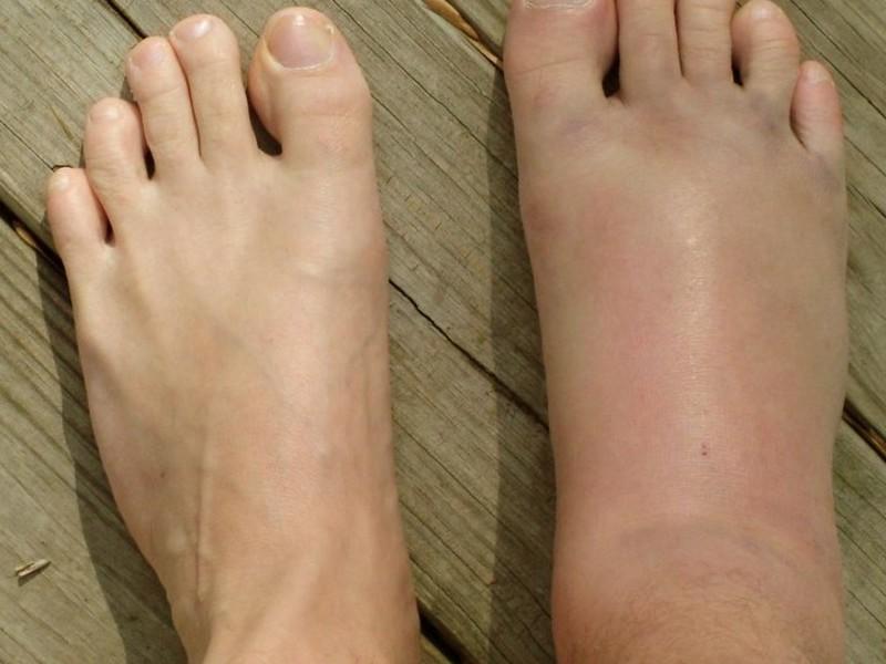 лечение опухоли суставов ног народными методами