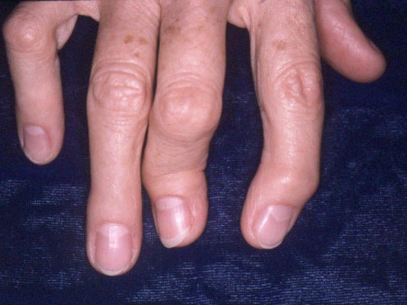 Блуждающий Артрит Симптомы И Лечение Лекарства
