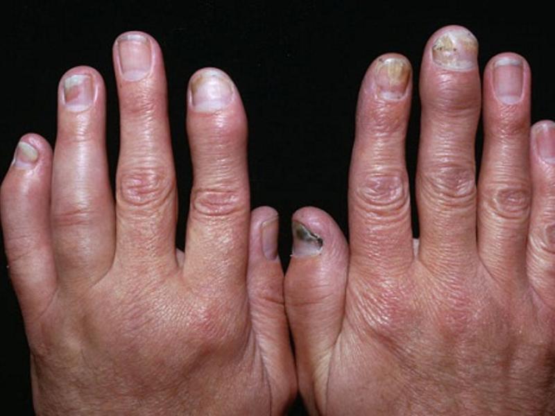 Артрит стопы причины симптомы и лечение фото диета