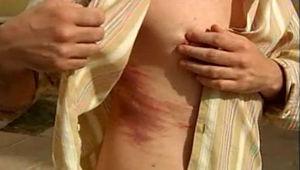 Перелом ребра симптомы и лечение как спать — topmedialine.ru