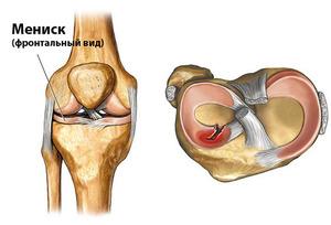 Болит колено при приседании на корточки
