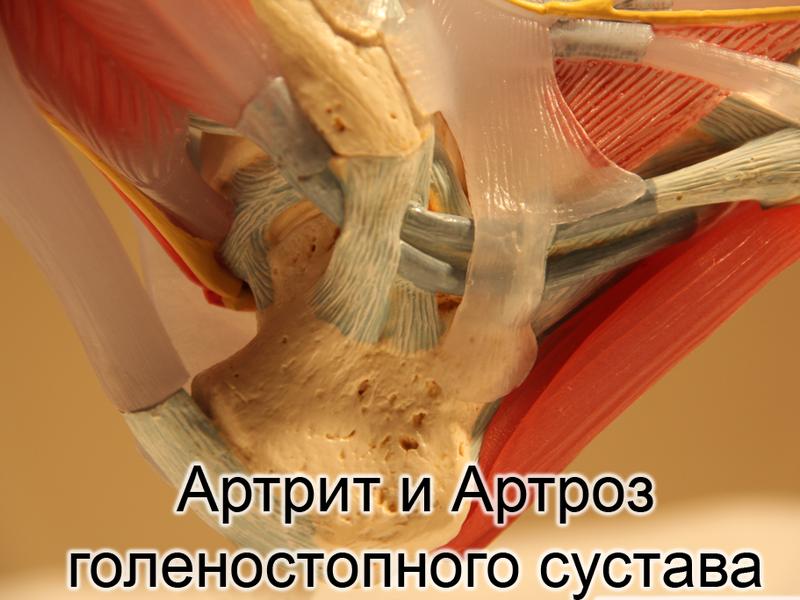 Артроз голеностопного сустава симптомы и лечение фото артроза голеностопа
