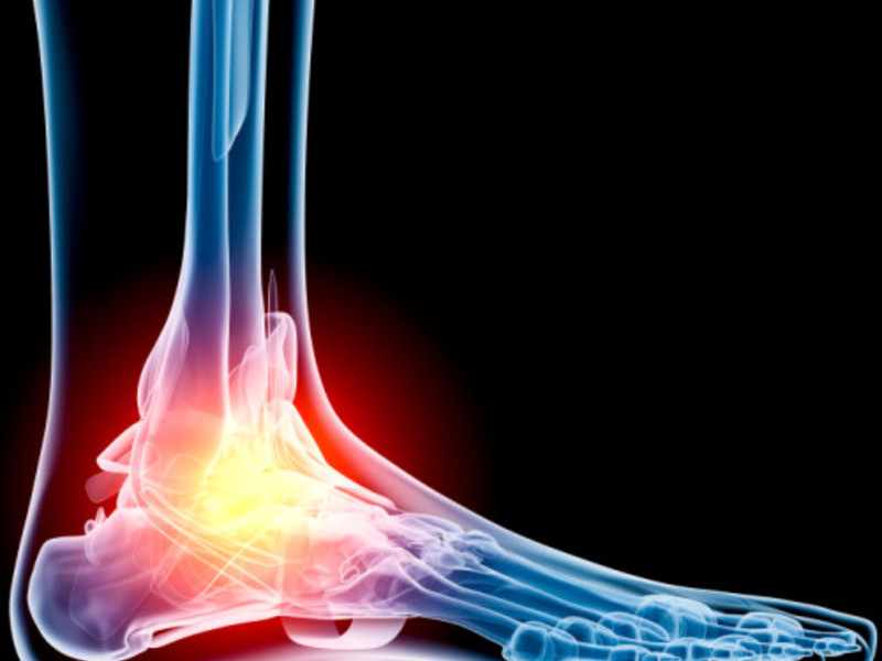 артроз суставов симптомы и лечение народными средствами