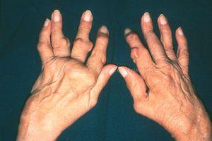 Лечение полиартрита возможно при помощи народной медицины