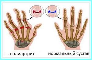 Полиартрит пальцев рук - симптоматика