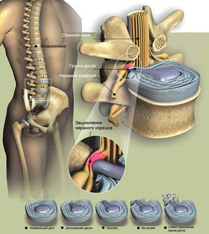 Боли в спине и тазу отдающие в ноги